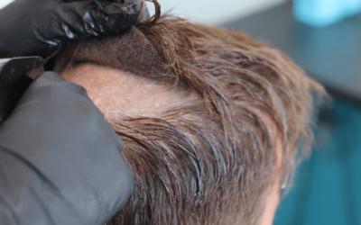 ¿Cuáles son las claves a la hora de retirar una prótesis capilar?